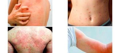 la enfermedad del hígado llamada Colangitis Biliar Primaria (CBP) lisofosfatidilcolina (LPC) libera sustancias que producen prurito y comezón en la piel
